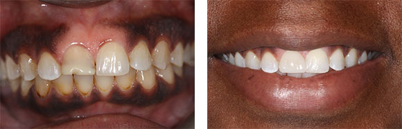 cosmetic-dentistry-charlotte