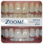 zoom-teeth-whitening-charlotte-nc