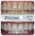zoom-teeth-whitening-charlotte-nc